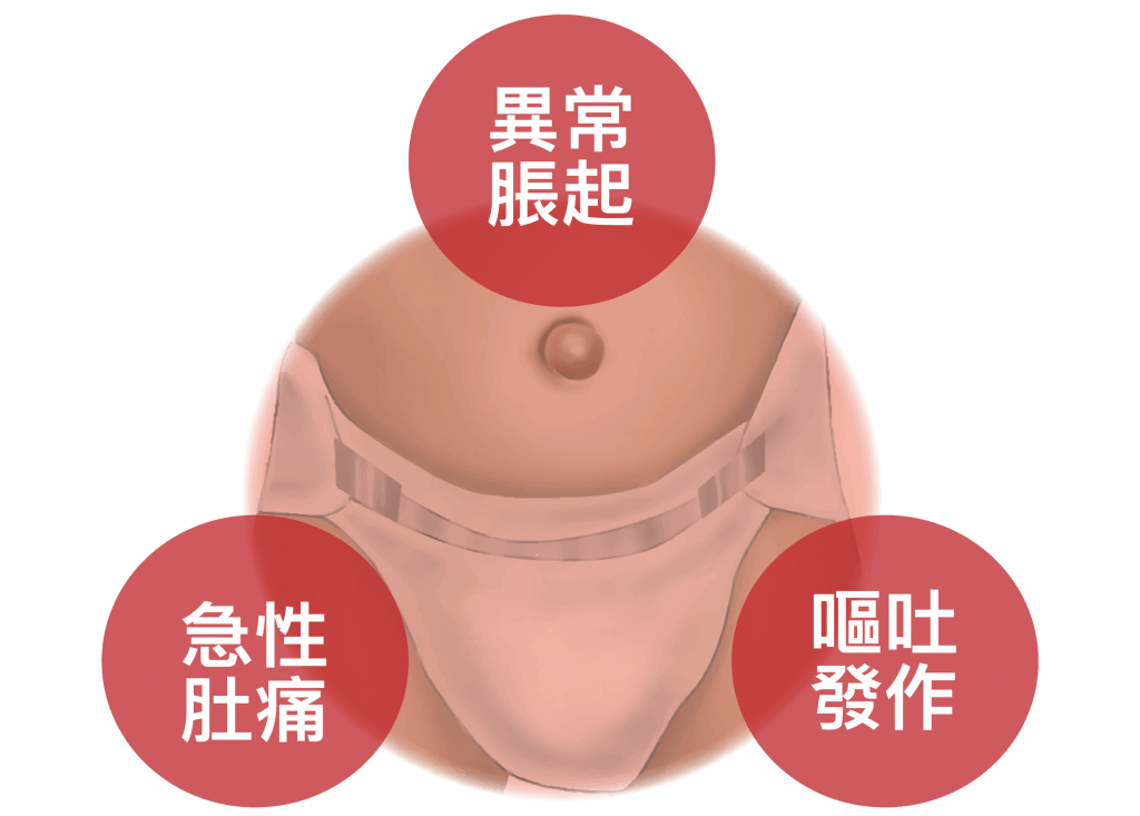 腹股溝疝氣(小腸氣)
